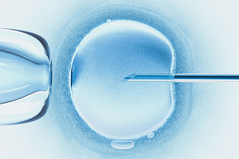 Egg Donation Treatment